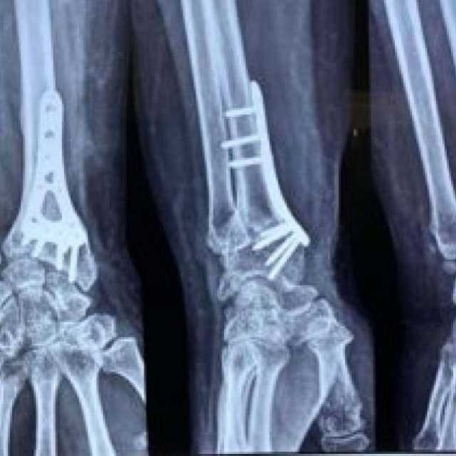 Best Orthopedic Surgeon In Kolkata